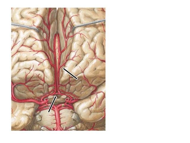 CT study of brain shows infarct involving left para sagittal frontal lobe. Area of involvement corresponds to left ACA ter...