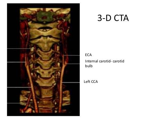 ECA Internal carotid- carotid bulb Left CCA 3-D CTA