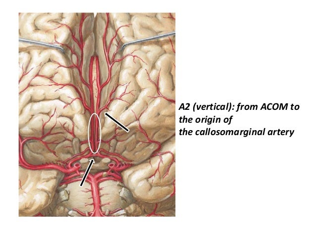 Variants ACA – ACoA Complex • Azygos anterior cerebral artery – It represents persistence of the embryonic median artery o...