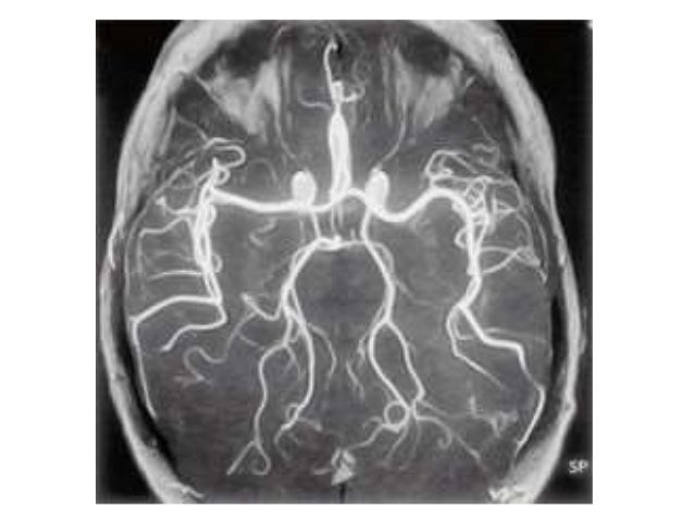 Azygos anterior cerebral artery. Multidetector CT angiogram shows convergence of the A1 segments to form a single midline ...
