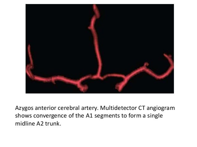 Variant • Accessory Middle Cerebral Artery – An accessory middle cerebral artery is an artery that arises from the anterio...