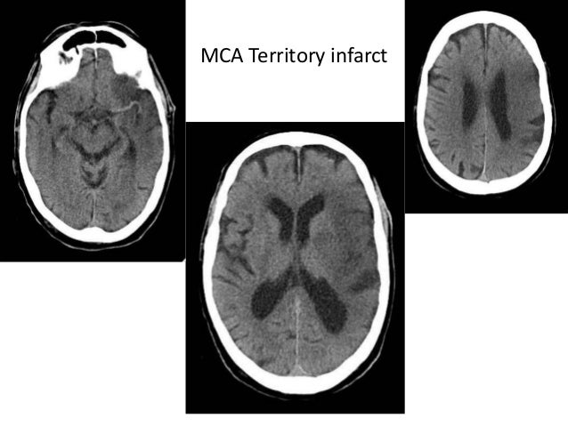 Posterior inferior cerebellar artery • Segments • anterior medullary segment – Front of medulla • lateral medullary segmen...