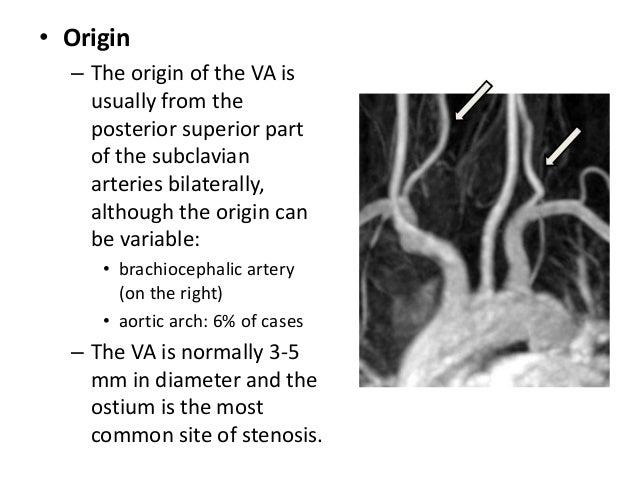 Branches 1. AICA – Anterior Inferior Cerebellar Artery – 1st major branch. – Posterior laterally in cerebellopontine angle...