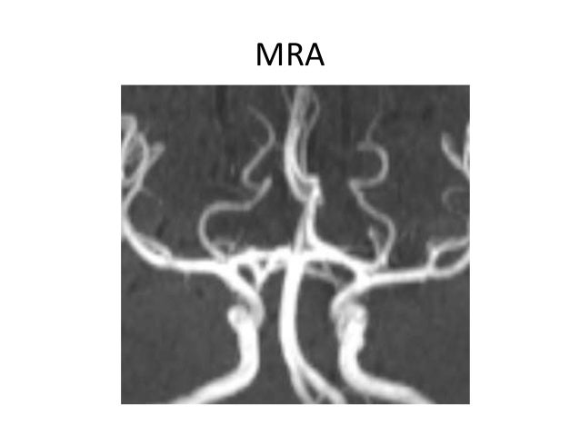 • An association has been observed between fenestration and aneurysm formation. • It has been postulated that turbulent fl...
