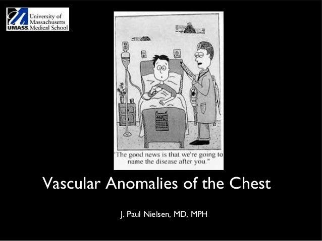 Vascular Anomalies of the Chest          J. Paul Nielsen, MD, MPH