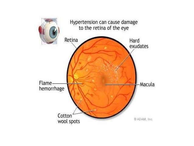 ... and renal function; 35.  sc 1 st  SlideShare : copper wiring eye - yogabreezes.com