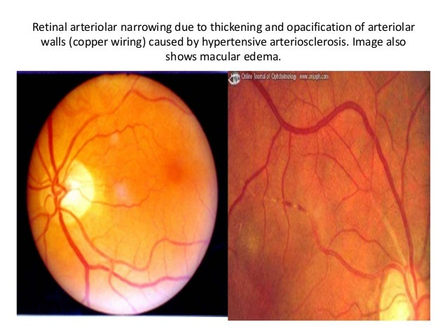... Glaucoma; 37.  sc 1 st  SlideShare : copper wiring eye - yogabreezes.com
