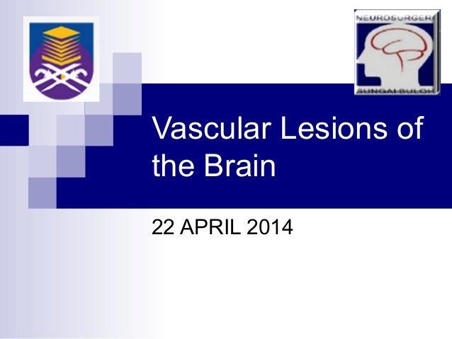 Vascular Lesions of the Brain 22 APRIL 2014