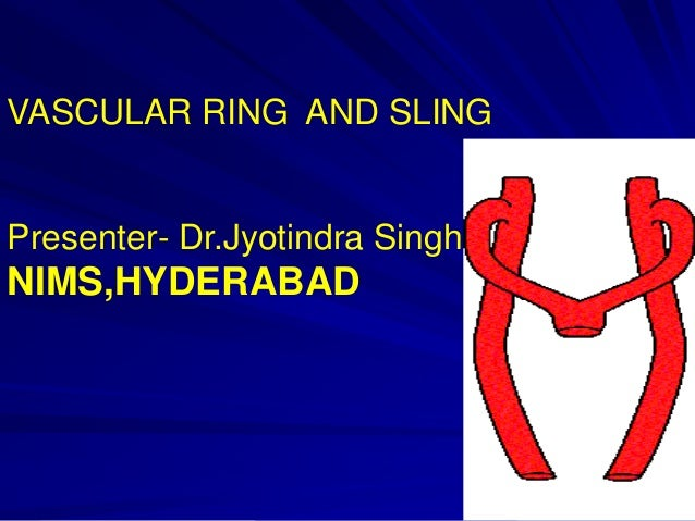 VASCULAR RING AND SLING  Presenter- Dr.Jyotindra Singh  NIMS,HYDERABAD