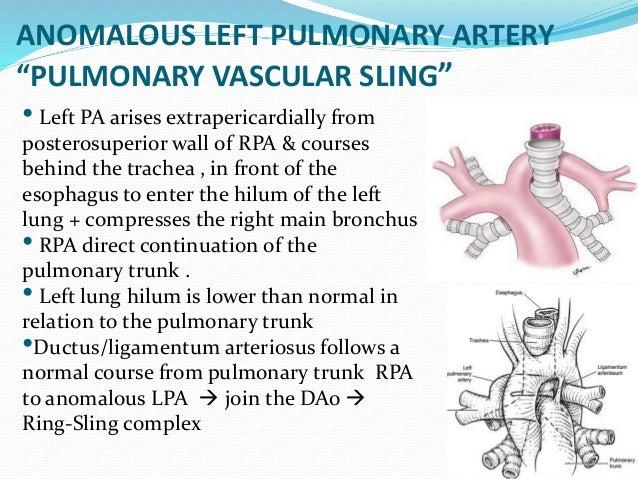 Vascular Ring Amp Sling