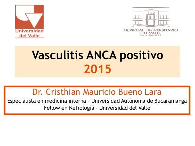 Vasculitis ANCA positivo 2015 Dr. Cristhian Mauricio Bueno Lara Especialista en medicina interna – Universidad Autónoma de...