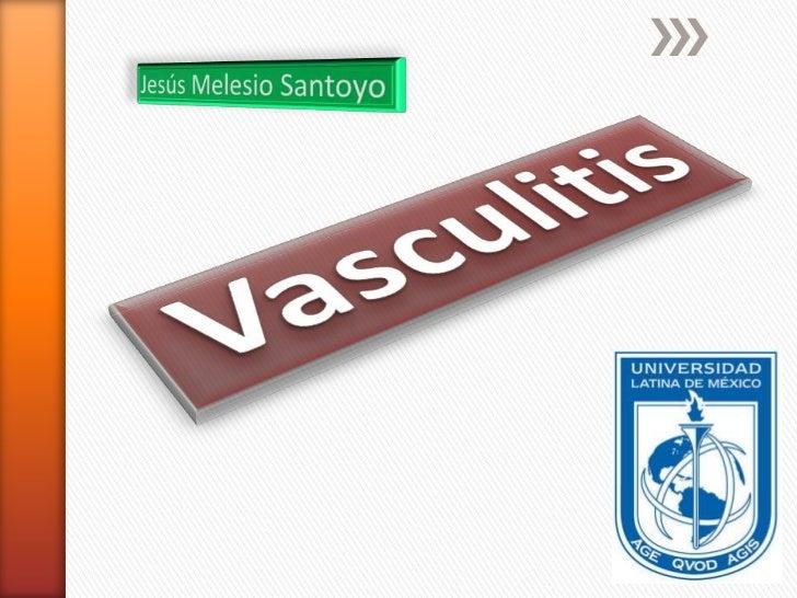 Jesús Melesio Santoyo<br />Vasculitis<br />