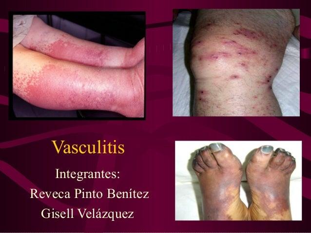 Vasculitis   Integrantes:Reveca Pinto Benítez Gisell Velázquez