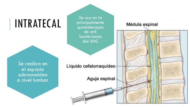 pictures of epidural steroid injections