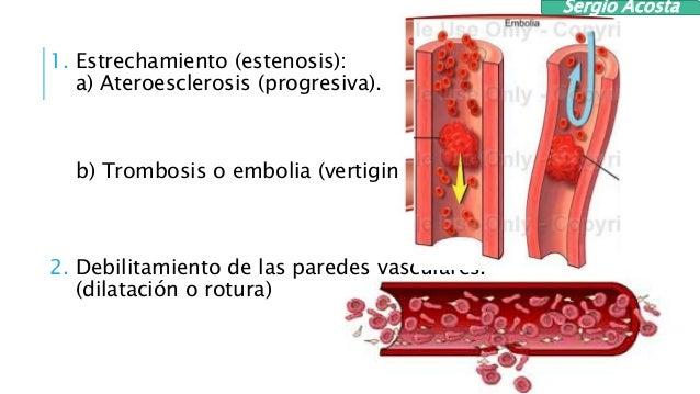 Varifort las revocaciones a varikoze