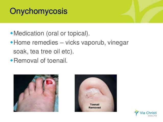 Oh, my aching feet! Presentation by Dr. Miki Matsuda