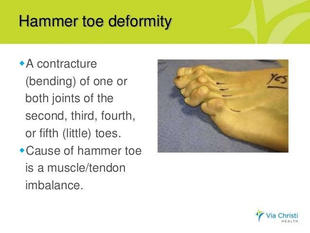 Oh, my aching feet! Presentation by Dr  Miki Matsuda