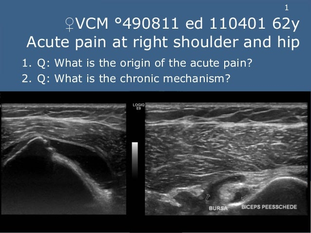 1 ♀VCM °490811 ed 110401 62y Acute pain at right shoulder and hip 1. Q: What is the origin of the acute pain? 2. Q: What i...