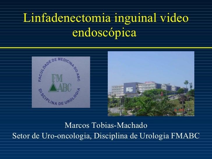 Linfadenectomia inguinal video endoscópica  <ul><li>Marcos Tobias-Machado </li></ul><ul><li>Setor de Uro-oncologia, Discip...
