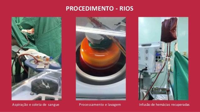 PROCEDIMENTO - RIOS Aspiração e coleta de sangue Processamento e lavagem Infusão de hemácias recuperadas