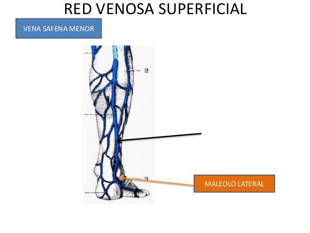 La tromboflebitis crónica de las venas profundas