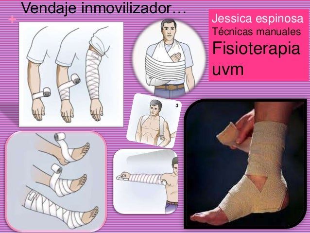 +Vendaje inmovilizador…Jessica espinosaTécnicas manualesFisioterapiauvm