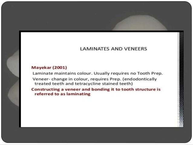 Porcelain Laminate Veneer Slide 3