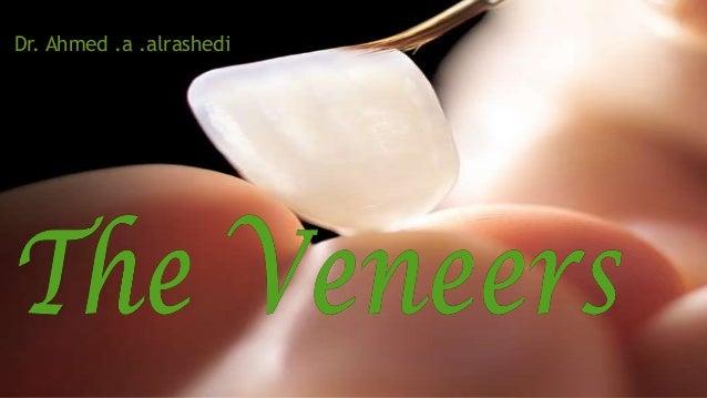 The Veneers  Dr. Ahmed .a .alrashedi