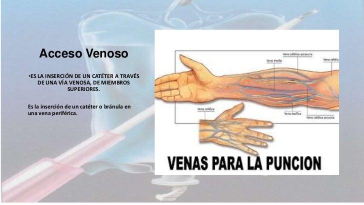 INTRODUCCIONLa venopunción es la instalación de una aguja o un catéter a la luz deuna vena a través de la piel. Permite el...
