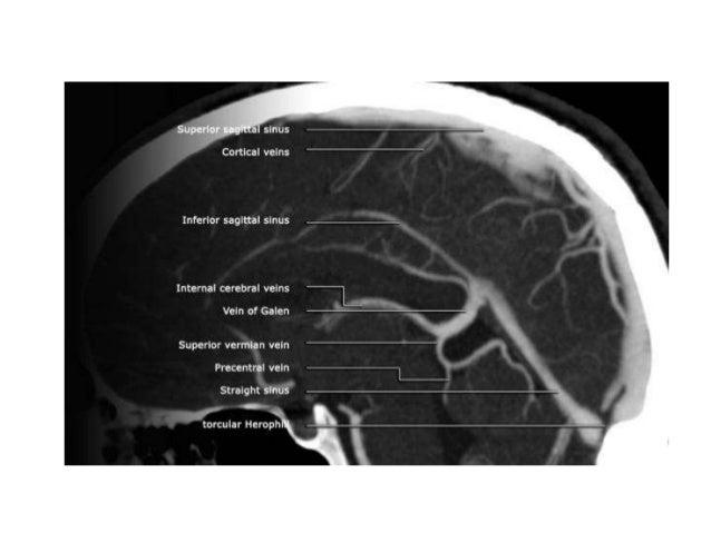 Venous Anatomy Of Brain Radiology