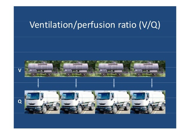 Ventilation Perfusion Ratio : Pneumology ventilation perfusion ratio and clinical