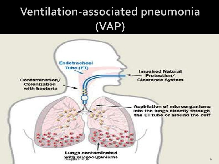 strategies to prevent ventilator associated pneumonia vap The new paradigm, called ventilator-associated events (vaes), was designed to overcome many of the limitations of ventilator-associated pneumonia (vap) as a quality metric including its complexity, subjectivity, low frequency, and marginal attributable mortality (2–9.