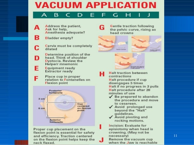 Ventose and forceps delivery for undergraduate Vacuum Delivery Complications