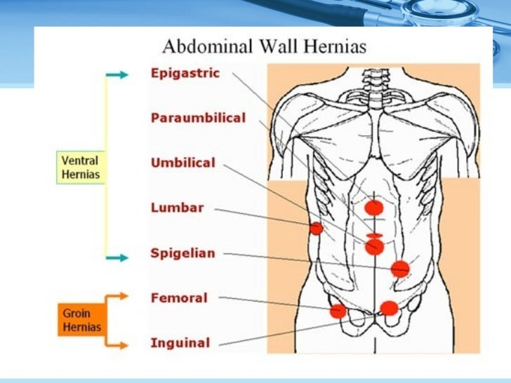 Ventral hernia by Dr Teo