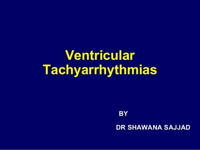 Ventricular Tachyarrhythmias BY DR SHAWANA SAJJAD