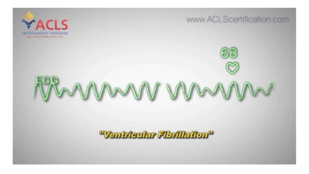 acls ventricular fibrillation certification institute slideshare