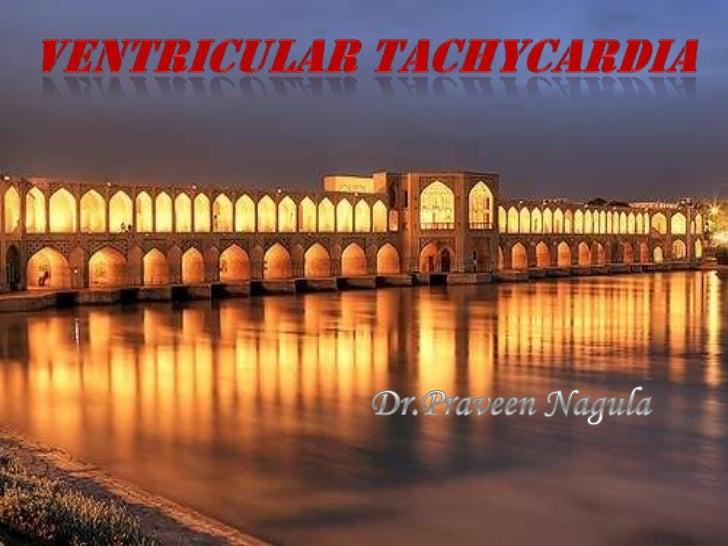 Ventricular tachycardia<br />Dr.Praveen Nagula<br />