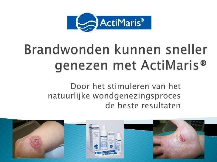 Brandwonden kunnen sneller genezen met ActiMaris®<br />Door het stimuleren van het natuurlijke wondgenezingsproces    de b...