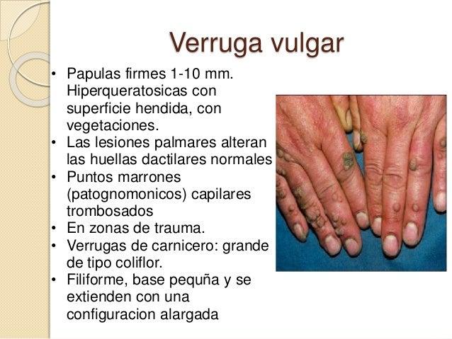 • Verrugas periungueales. Son verrugas vulgares localizadas alrededor o por debajo de las uñas. Plantean dificultades tera...