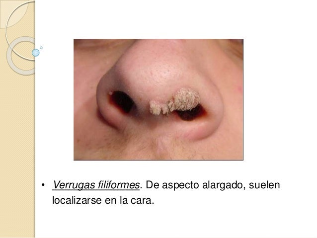  Ojos de pescado  .5 a 1 cm  Dolorosas a la presión  Involución en 1 año o menos