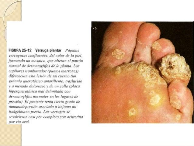 Dx diferencial Verruga vulgar: Molusco contagioso, queratosis seborreica, queratosis actinica, queratoacantoma, Verruga pl...