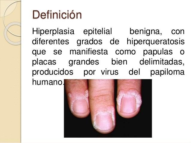 Definición Hiperplasia epitelial benigna, con diferentes grados de hiperqueratosis que se manifiesta como papulas o placas...