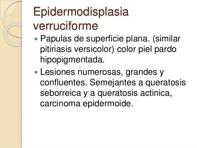 • Las verrugas genitales son especialmente contagiosas y requieren una prevención adecuada. Prevencion