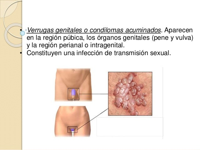 • No hay un tratamiento antiviral específico. • Sólo podemos destruir las células infectadas. • Hay que intentar eliminar ...