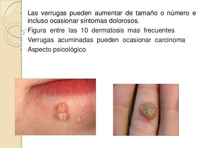 Verruga vulgar • Papulas firmes 1-10 mm. Hiperqueratosicas con superficie hendida, con vegetaciones. • Las lesiones palmar...