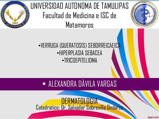 DERMATOLOGIA •VERRUGA (QUERATOSIS) SEBORREICAEICA •HIPERPLASIA SEBACEA •TRICOEPITELIOMA • ALEXANDRA DÀVILA VARGAS UNIVERSI...