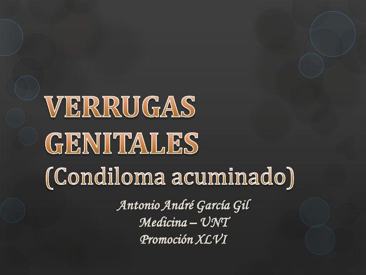 Antonio André García Gil   Medicina – UNT   Promoción XLVI