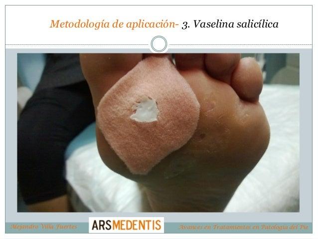 Metodología de aplicación- 3. Vaselina salicílica Alejandro Villa Fuertes Avances en Tratamientos en Patología del Pie