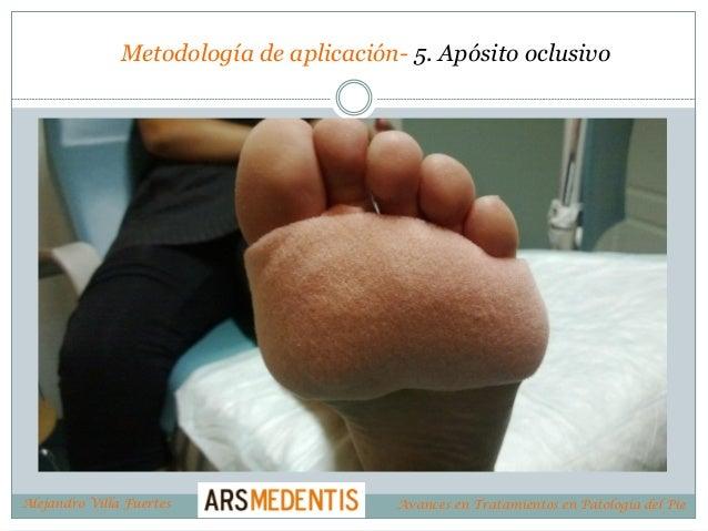 Metodología de aplicación- 5. Apósito oclusivo Alejandro Villa Fuertes Avances en Tratamientos en Patología del Pie