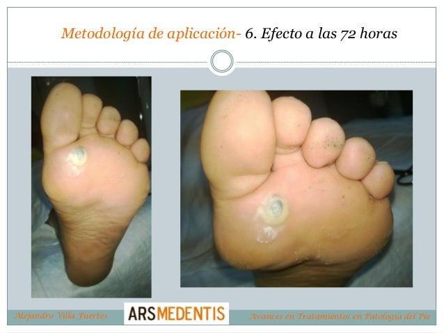 Metodología de aplicación- 6. Efecto a las 72 horas Alejandro Villa Fuertes Avances en Tratamientos en Patología del Pie